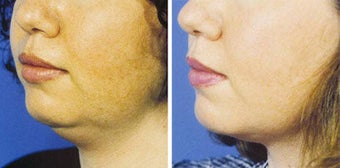 Chin Liposuction before 640689