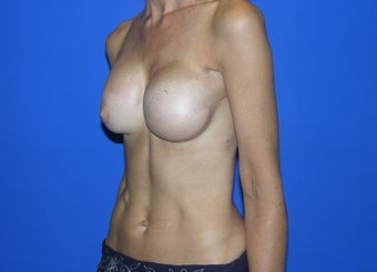 Breast Reconstruction after 482770