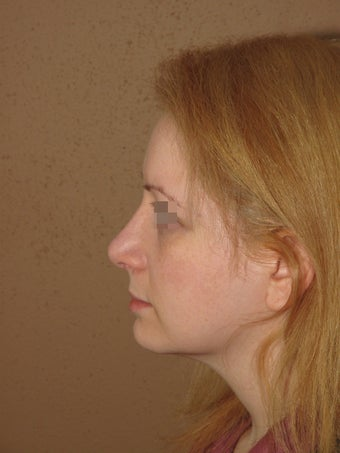 rhinoplasty nose job  after 270695