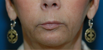 Lip lift + Chin implant + ArteFill before 522080