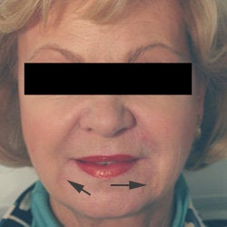 Oral Commissures (marionette lines) with Restylane Treatment after 93346