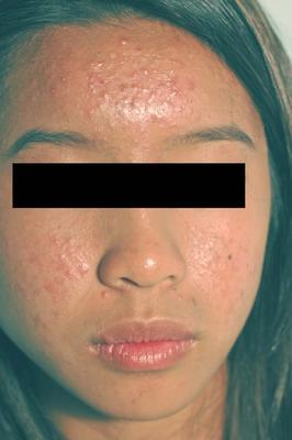 Laser Acne Treatment before 82970
