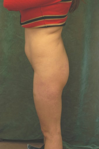Women's Buttocks Augmentation  before 518112