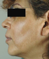 Melasma Treatment  before 120088