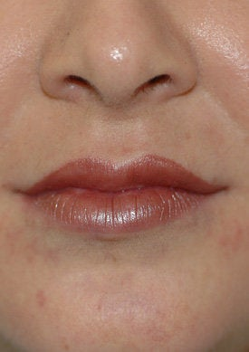 Restylane lip injections after 93353