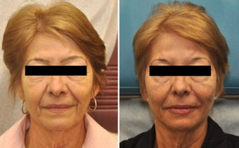 Restylane and Perlane used to volumize the entire face.  before 216359