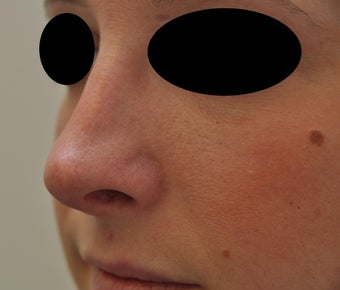 Non-surgical rhinoplasty before 182427