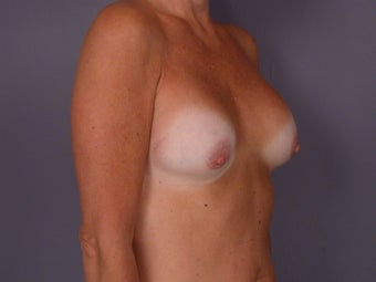 Circumareolar Breast Lift and Implants  before 307465