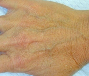 Sclerotherapy treatment for hand before 371748
