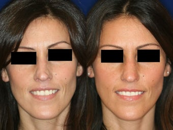 Non-Surgical Rhinoplasty before 229775
