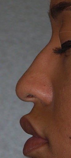 Rhinoplasty before 271667