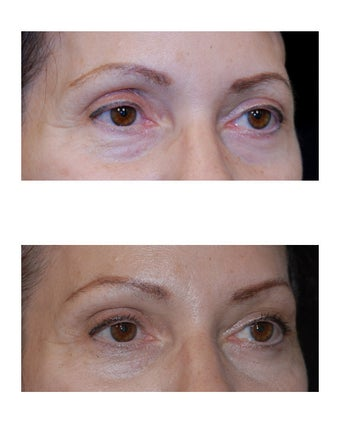 Lateral Brow Lift after 349203