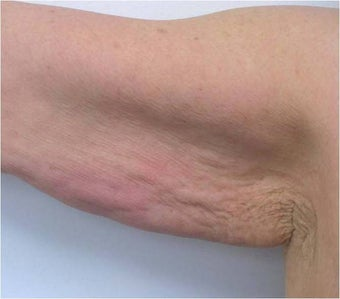 Accent for Cellulite Treatment after 600365
