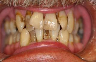 Dental Implants before 510550