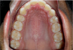 Braces and Extraction after 349028