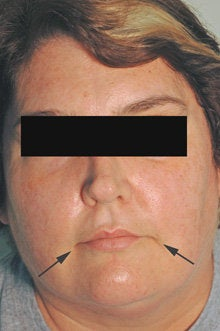 Botox and Restylane for Mouth Frown after 91054