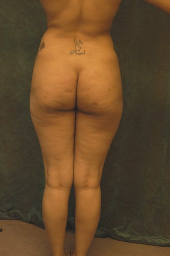 Women's Buttocks Augmentation 518140