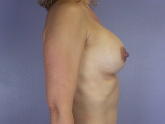 Breast Implants  after 304991