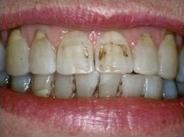 Smile Makeover Treatment before 430545