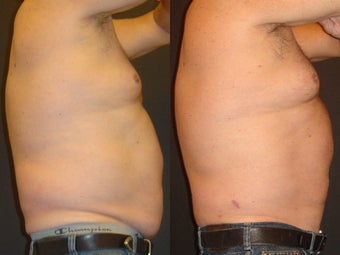 SmartLipo before 96260