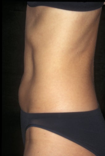 CoolSculpting treatment of unwanted tummy fat after 359376