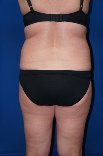 Liposuction before 612610
