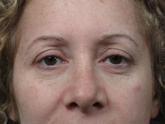 Eyelid Surgery  before 306456