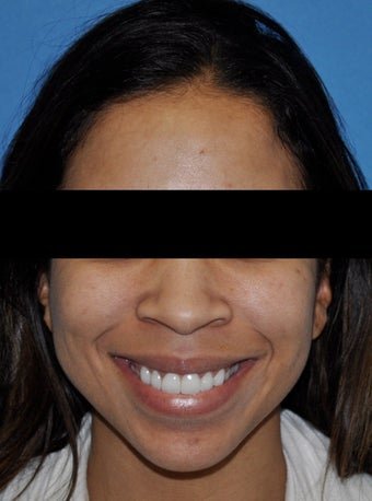 African American Rhinoplasty before 364918