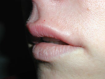 Restylane for upper lip after 100943