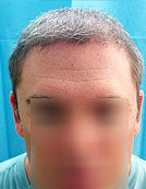 Mixed Head and Body Hair FUE – SFET Hair Transplantation from Nape, Beard, and Body Hair after 196024
