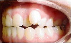 Invisalign Treatment 359152
