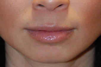 Lip Augmentation after 199331