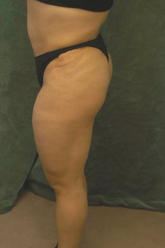 Women's Buttocks Augmentation  before 518138