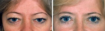 Blepharoplasty before 643234