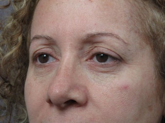 Eyelid Surgery  before 306457