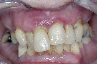 Dental implants supporting a full upper denture before 237973