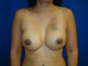 Breast Revision Surgery, Symmastia Repair after 139397