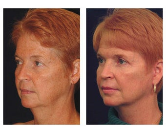 Lower Face and Neck Lift before 355084