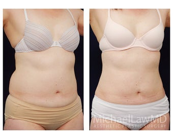 Liposuction after 495473