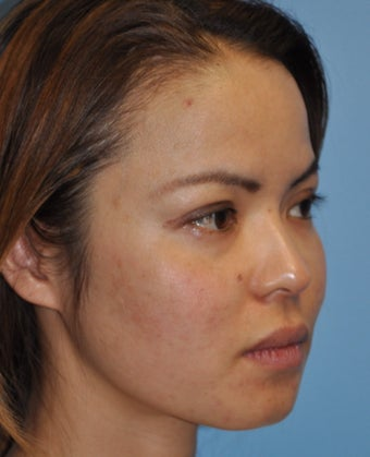 Rhinoplasty-Asian 371839
