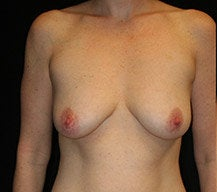 Breast Lift before 633754
