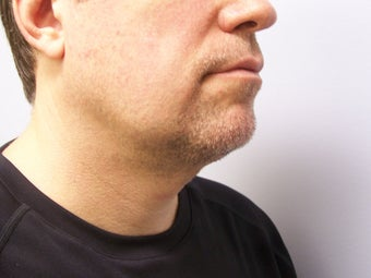 Chin/Neck Liposuction 593084