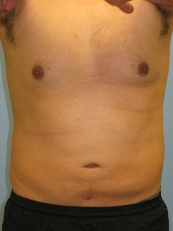 Liposuction Male after 575522