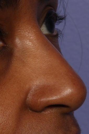 Restylane - Nose after 309233