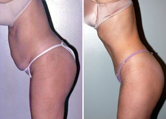 Abdominoplasty (Tummy tuck) after 330698