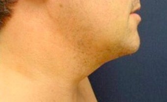Male Neck Lipo  after 374874