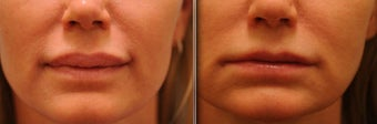Upper and Lower Lip Reduction before 515448