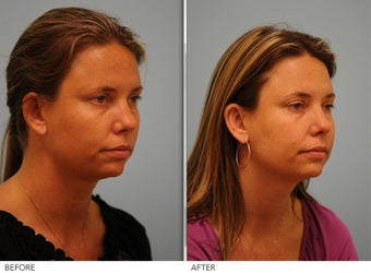 Otoplasty after 306851
