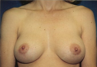 Breast Augmentation after 266777