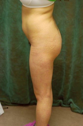 Women's Buttocks Augmentation  after 518112